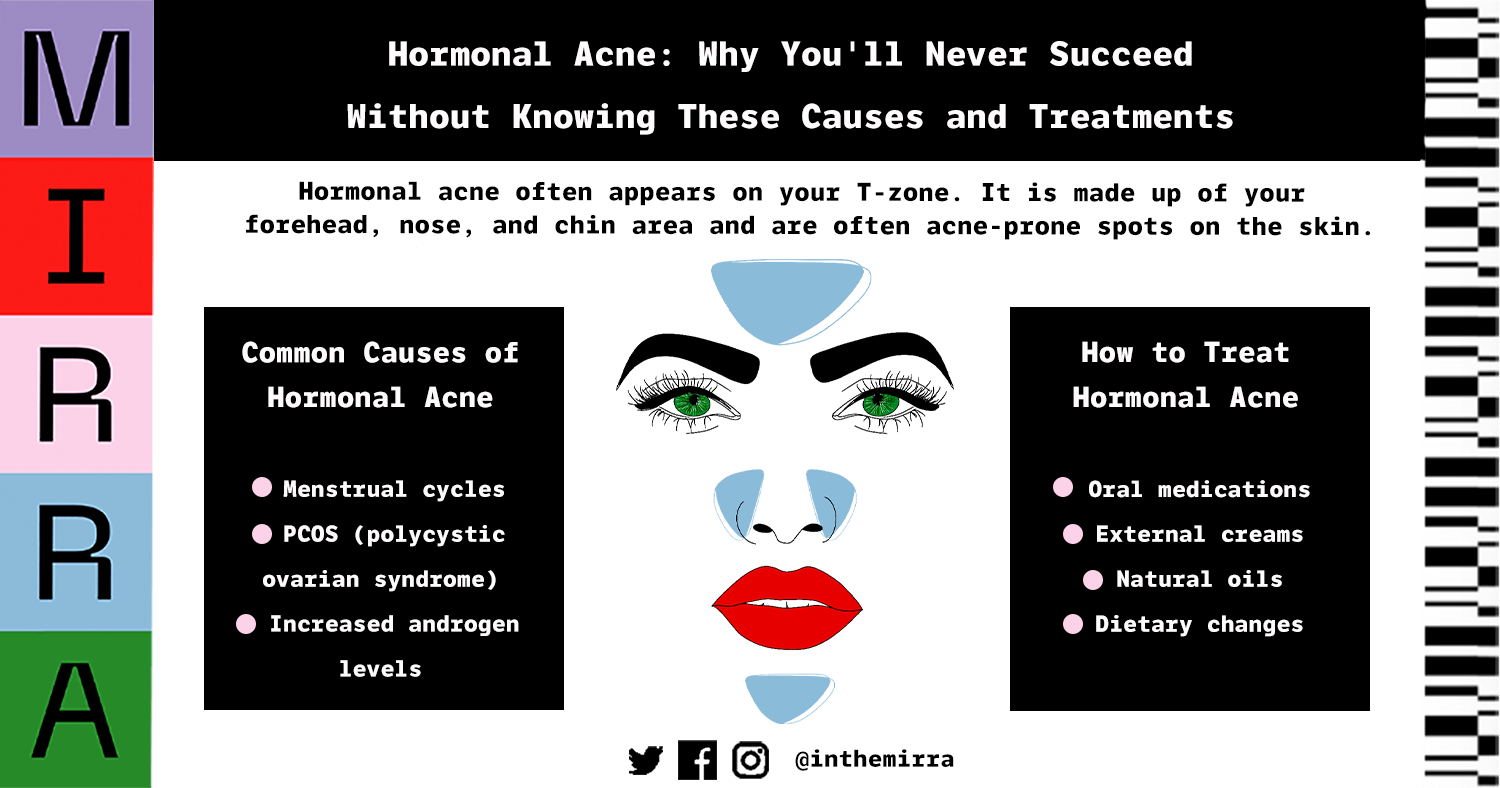 Hormonal acne common causes and treatments infographic skincare