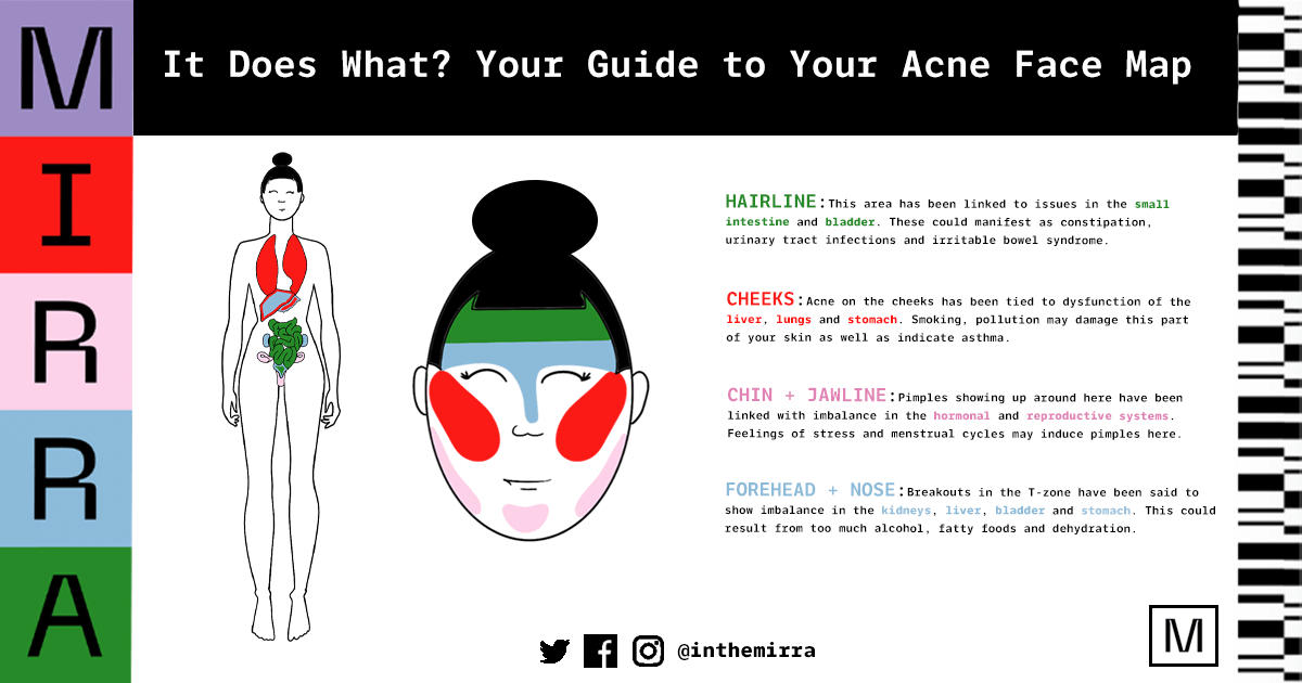 Guide to Acne Face Map, how to make your acne face map and how to read acne face mapping
