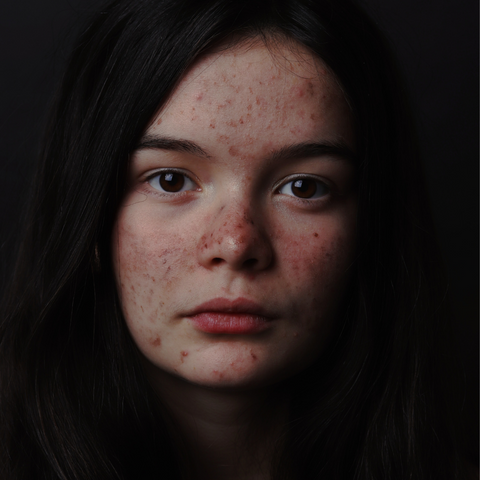 It does what? Your Guide to Your Acne Face Map