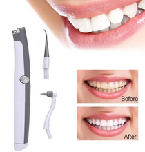 Load image into Gallery viewer, Sonic Scaler Ultrasonic Tooth Stain/Plaque Remover