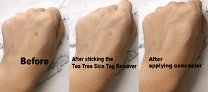 Tea Tree Skn Tagg Remover