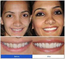 Load image into Gallery viewer, Snap-On Smile Braces