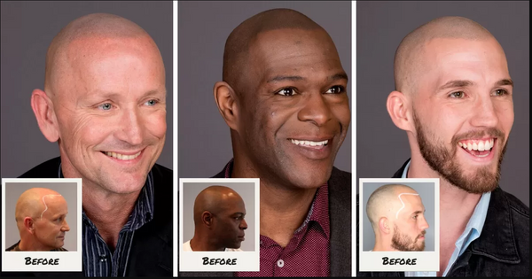 Scalp Micropigmentation (limited time pricing, reg price 2600.00) - customcrowns