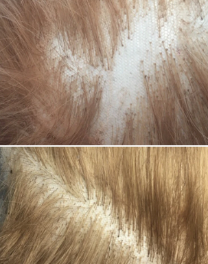 Lace replacement/repair with hair replacement.