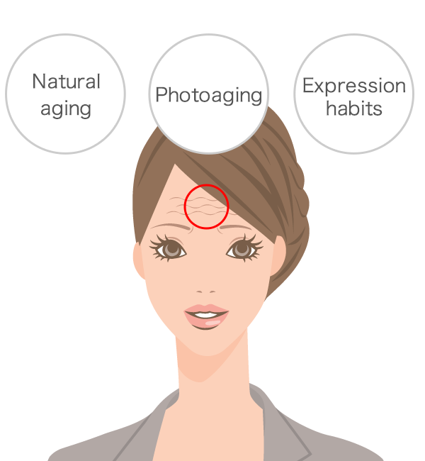 Natural aging, photoaging, and expression habits