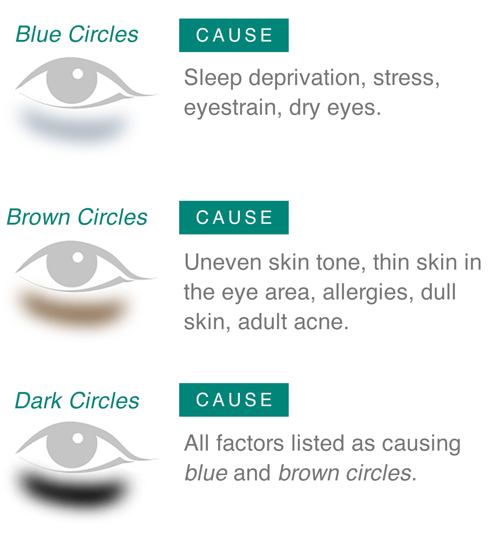 Blue Circles, Brown Circles and Dark Circles and their causes