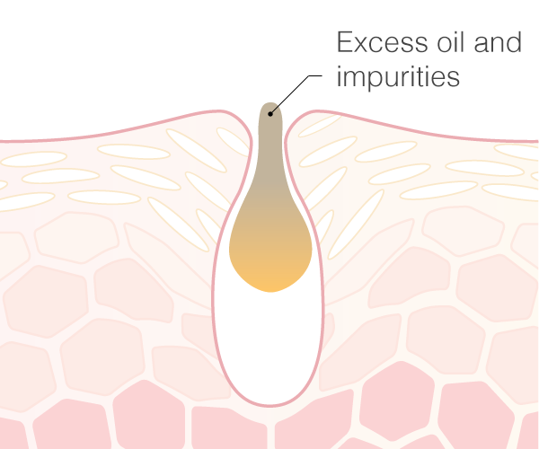Excess oil and impurities