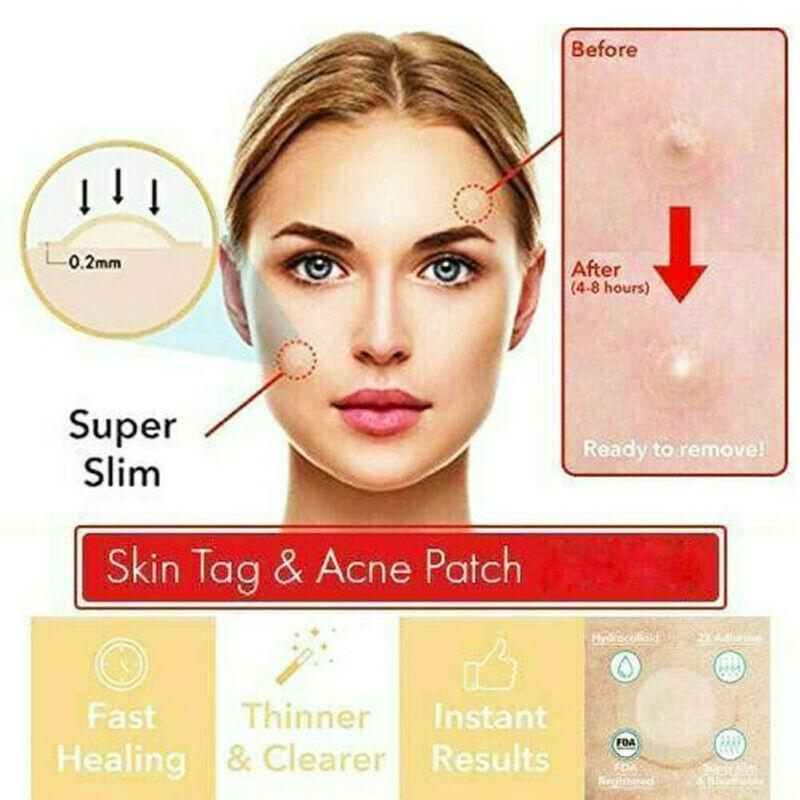 Acne Tag Removal Patch 24 Pcs Set The Dhans