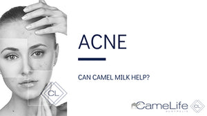 Camel Milk and Acne