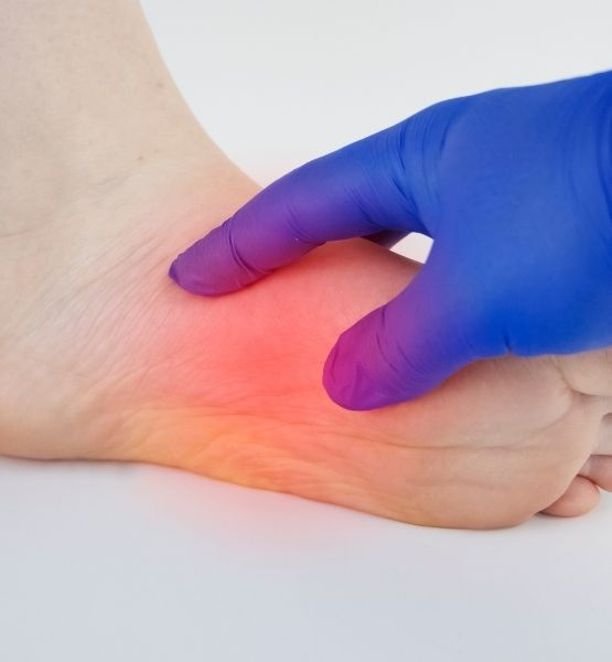 Pain. Image of a foot being treated for plantar fasciitis