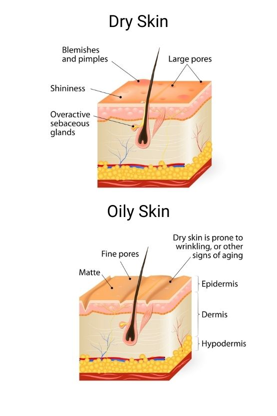 Diagram comparing dry skin and oil skin