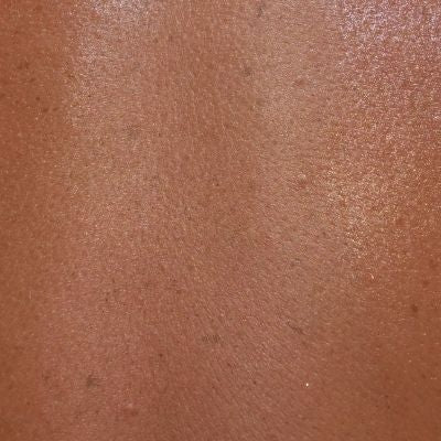 Image of the skin's outer layer the epidermis