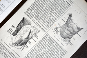 "Abdomen Body Print - 10.25""x6.75"" - Set of 3 Antique French Lithographs - 1920s Larousse Medical - Printed in Paris, France - 100% Original"