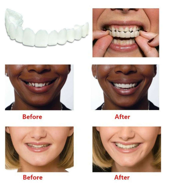 Teeth Whitening Snap On Smile Teeth Cosmetic Denture Instant Perfect Smile Teeth Fake Tooth Cover Shopping Health & Beauty Online