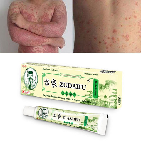 15g/Box Zudaifu Skin Psoriasis Cream Dermatitis Eczematoid Eczema Ointment Treatment