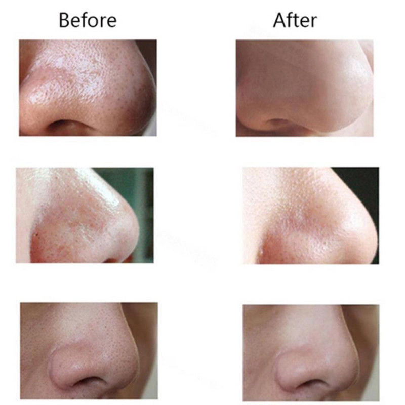Facial Pore Blackhead Cleaner