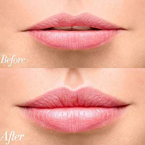 BEST LIP PLUMPER ENHANCER TOOL -before and after