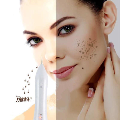 Laser Pen Removal for Tattoos Age Spots Warts Moles Scars & Freckles
