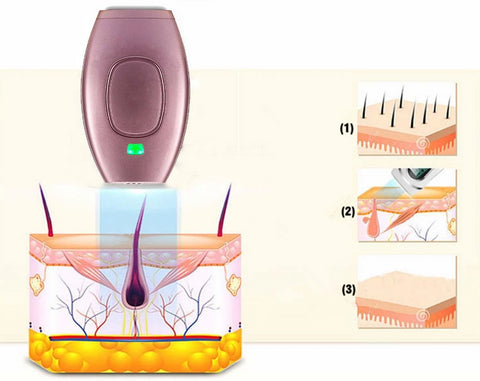 Perfect Skin Laser Hair Removal Handset steps how it works