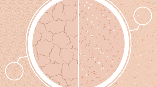Dehydrated Skin vs. Dry Skin: What's the Difference?