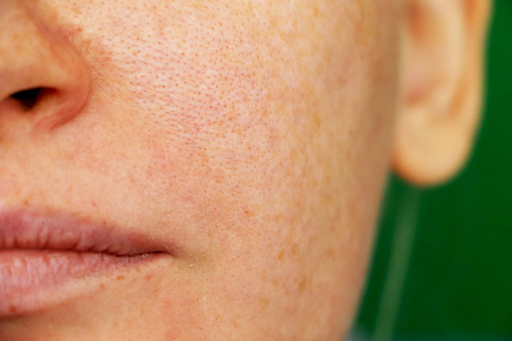 Close up of visible pores on skin