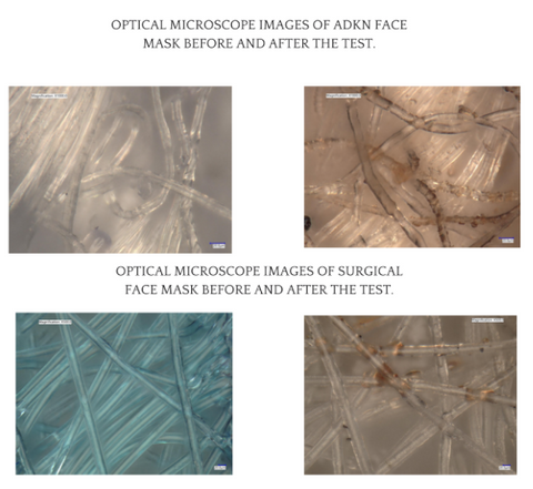 ADKN 4 Layer Bamboo masks vs Disposable Masks under the microscope