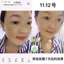 Load image into Gallery viewer, Wouwou whitening freckle cream