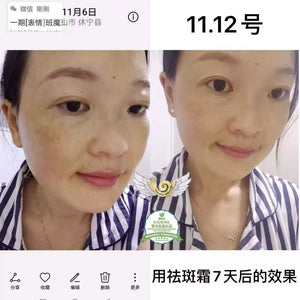 Wouwou whitening freckle cream