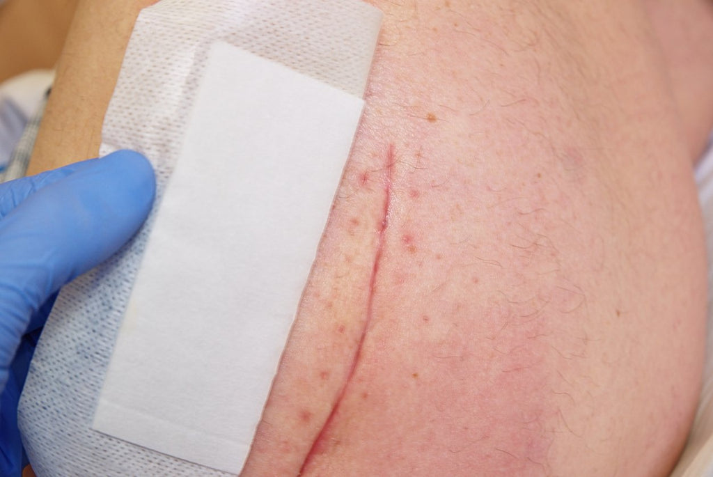 Scar Treatments & Dressings