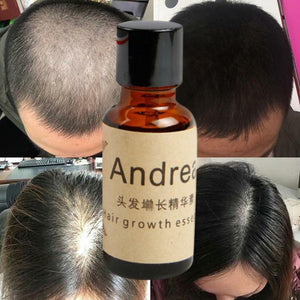 Powerful Hair Growth Products Fast Liquid Essential Oil Hair Loss Treatment Preventing Hair Loss 20ml tslm2 Hair Care