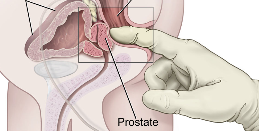 What Is A Prostate Massager, And How Do You Use It?