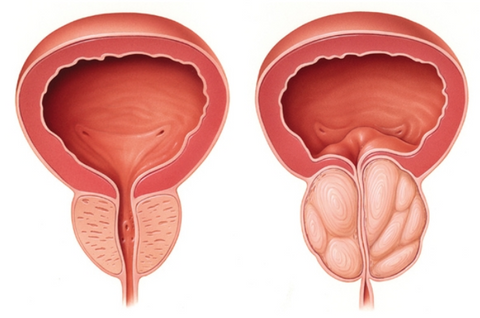 an illustration of the difference between a normal and an enlarged prostate