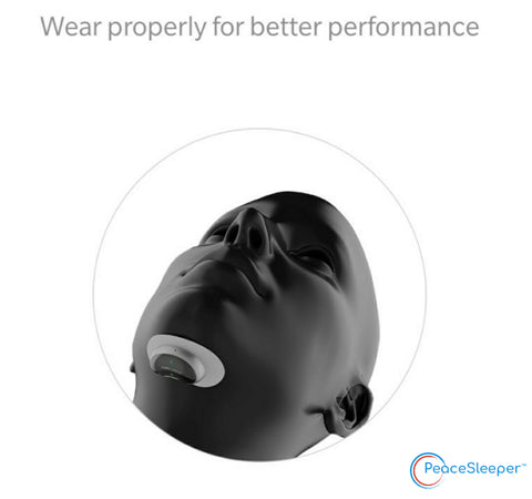 PeaceSleeper Proper Placement of Anti Snore Device for Best Performance and alleviating your snoring symptoms