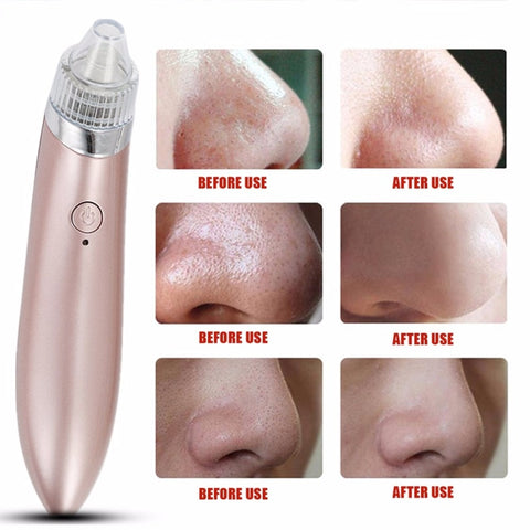 Image of Electric Blackhead Extracting Remover Vacuum Pore Cleaning tool