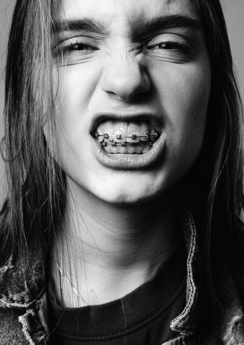 Long haired girl with braces showing off her teeth, for AutoBrush