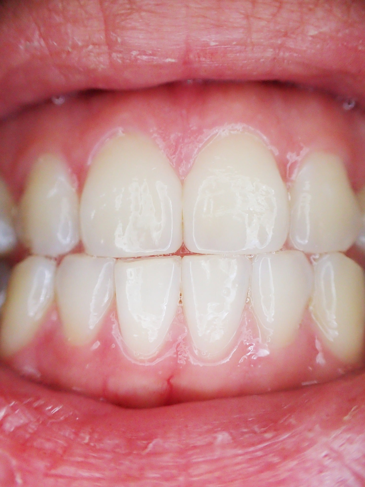 Close up of someone's teeth and gums, for AutoBrush