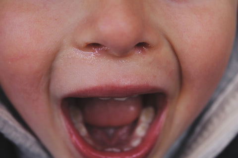Crying child, for AutoBrush for Kids blog