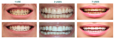 Autobrush Teeth Whitening Kite Before and After