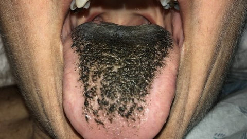 Person that has a hairy black tongue, for AutoBrush