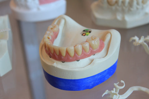 dentures on a table