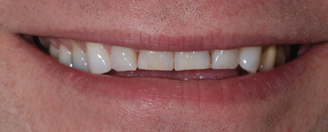 Close up image of teeth with flat edges, for AutoBrush