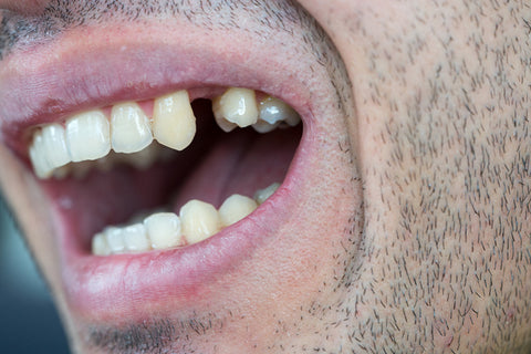 Man with a missing tooth, for AutoBrush