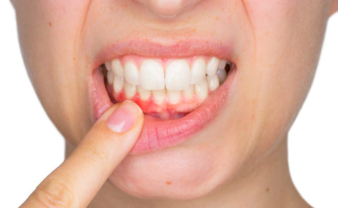 Lady showing her inflamed gums, for AutoBrush