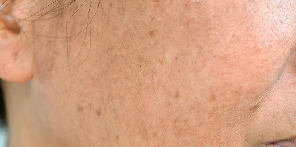 Hyperpigmentation – frequently asked questions