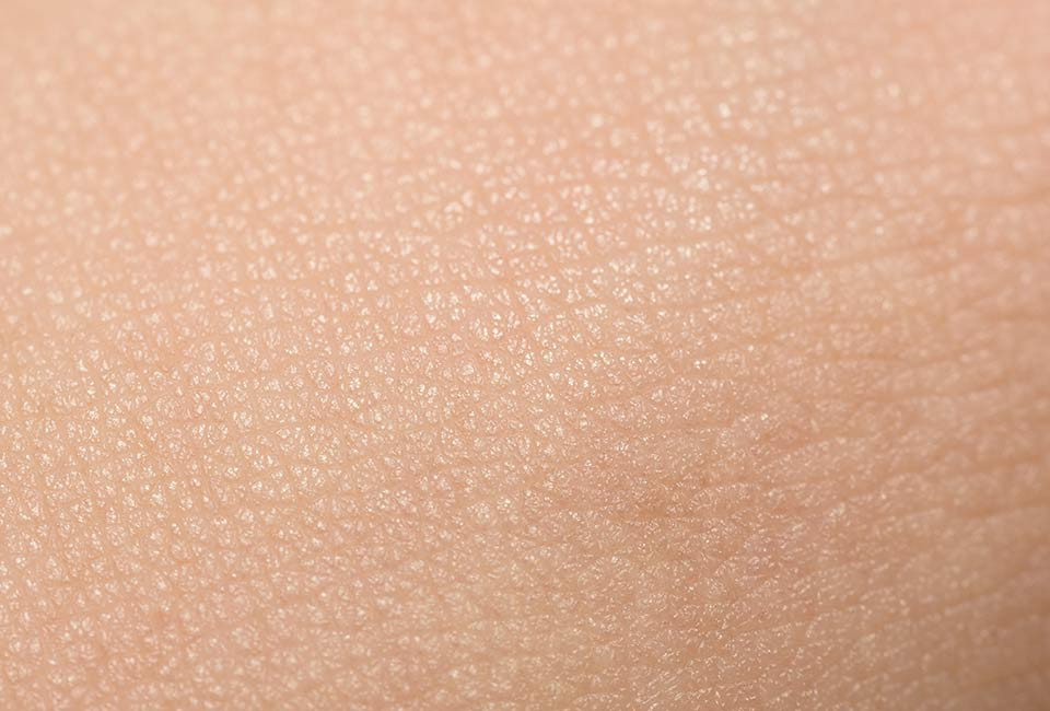 Causes of aging - How does aging affect the skin