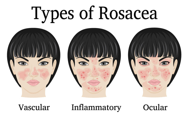 What Kind of Facial Sunscreen Should I use with Rosacea?
