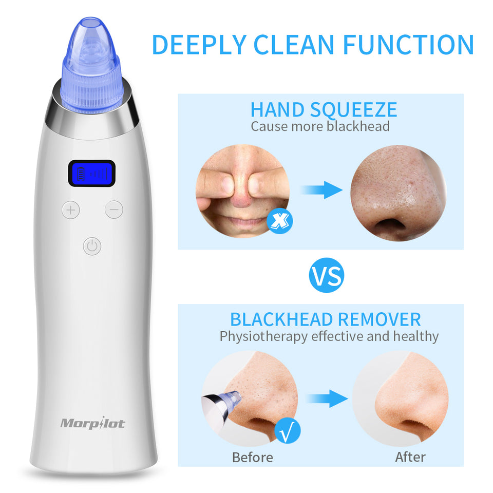 Electric Plastic Blackhead Suction Remover