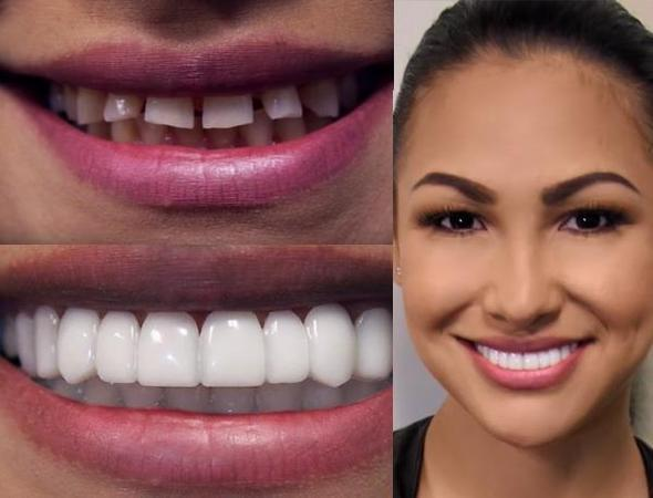 InstaWhite™ Snap On Smile  -  TOP TEETH / FOR WOMEN  -  Honey Locker -  Snap on Smile