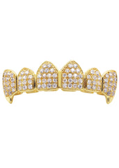 Gold Diamond Grillz | 2.8 Grams