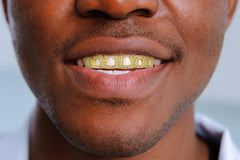 Gold Diamond Grillz | 2.7 Grams